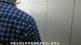 中國大陸湖南長沙的趙先生認為女兒外貌越長越差,懷疑非親生,經親子鑑定結果發現,竟是扁桃腺腫大影響外貌所致。(圖/翻攝自梨視頻)