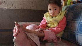 血管瘤腫成象腿…5歲女孩難圓上學夢 (圖/翻攝自新浪)