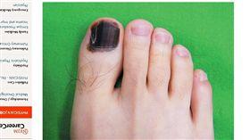 黑色素癌,腳趾甲整片變黑(圖/翻攝自新英格蘭醫學雜誌(NEJM)官網)