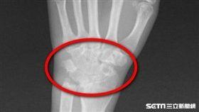 手腕關節因為類風濕反覆發炎而磨損僵硬變形。(圖/台北慈濟醫院提供)