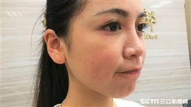 醫師黃毓惠提醒,越舔抿嘴巴反而嘴巴會越乾。(圖/記者楊晴雯攝)