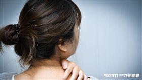 醫師黃毓惠提醒,國外研究顯示,近8成乾癬病灶會出現在頭皮。(示意圖/台灣乾癬協會提供)