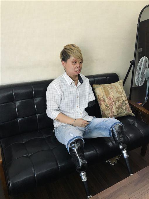 變形人生/燒傷毀容只剩左手,鋼鐵女孩「願我成為別人祝福」,莊雅菁(記者郭奕均攝影)