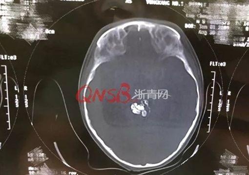 浙江男童腦幹內有9顆牙/杭州網