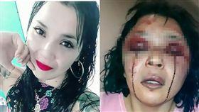 阿根廷女子遇恐怖情人,被打到留下「血淚」。(圖/翻攝自太陽報)