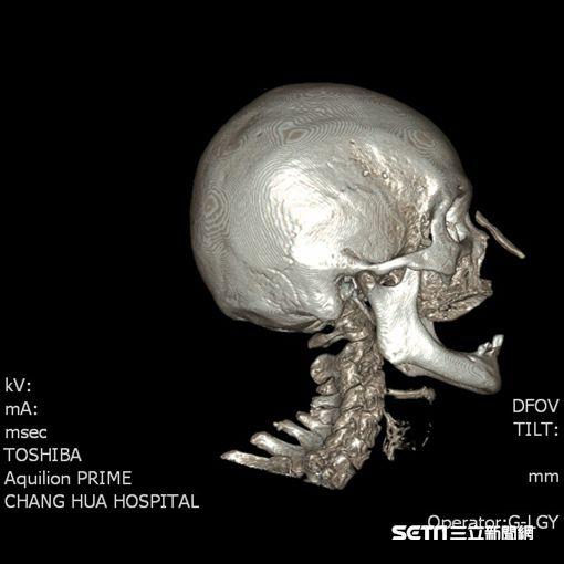 電腦斷層顯示,患者黃女士的鼻骨上方有一塊突起物。(圖/彰化醫院提供)