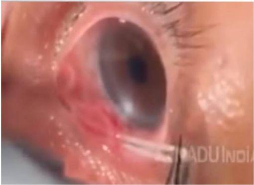 阿公眼睛又癢又疼 眼裡竟拉出「15公分寄生蟲」! 圖/翻攝自youtube