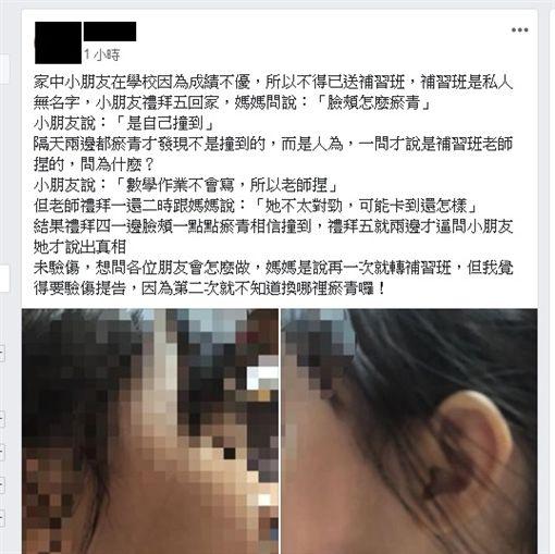 爆料公社,女童,補習班,臉頰,瘀青(圖/翻攝爆料公社)