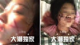 (圖/翻攝自海寧大潮網)恐怖情人,毀容,開山刀,中國
