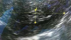 避孕器竟藏婦人體內30多年,碎成針狀插進子宮肌肉層。(圖/翻攝鄭丞傑醫師健康教室臉書)