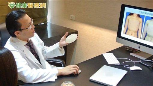 吳至偉醫師指出,現在乳癌切除重建最常用的手術方式為「果凍矽膠乳房重建」。
