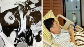 陳水扁臉書表示腎結石掛急診,臉書