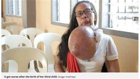 下顎痛別輕忽!婦下巴長「比西瓜大」巨瘤 花光積蓄治不好 圖/翻攝自鏡報