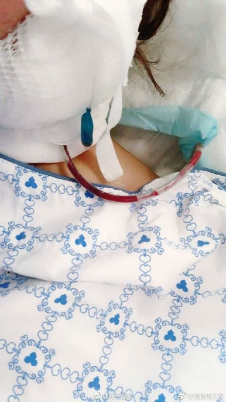 女主播洛麗塔做削骨手術被割喉/翻攝自微博