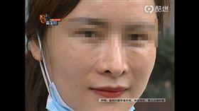 女模整鼻變「男人鼻」,連女兒都叫她怪物。(圖/翻攝1818黄金眼)
