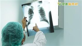 根據台大醫院新竹分院資料顯示,超過五成患者在初診斷罹患肺癌時,癌細胞就已經發生轉移,其中至少三成病患,都會出現「骨轉移」,也就是癌細胞跑到骨頭的問題。