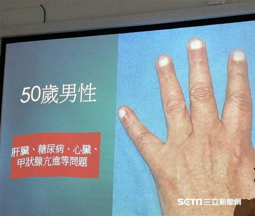 指甲無血色,呈現白指甲。(圖/記者楊晴雯攝)