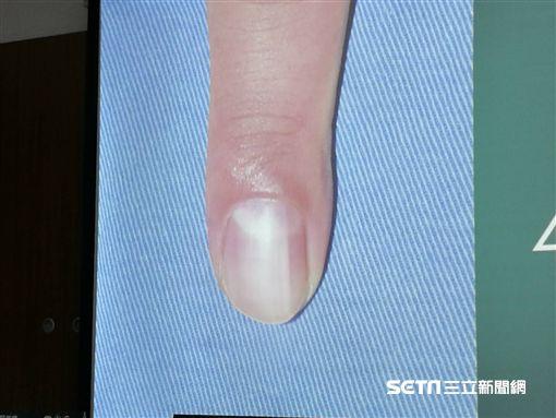 皮膚科醫師李勇毅說明指甲藏有脈絡球瘤的腫瘤症狀。(圖/記者楊晴雯攝)