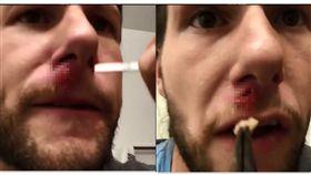 美國有一名男子臉上出現一個類似小腫瘤的傷口,就醫之後持續服用抗生素,但是傷口還是讓他感到相當不舒服,於是他決定自己「手動」將傷口裡的不明物體拔出,並一邊錄影記錄,影片中可以看到他從臉上的傷口拉出一個白色塊狀物,之後皮膚留下一個大大的「黑洞」,畫面看起來相當驚人。(圖/翻攝自 Instagram:chrisalexyocom)