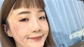 回歸社會是燒燙傷者重要的課題,但他們普遍曾被歧視。23歲李欣蓉出生3個月就被燒傷而腳趾截肢,領有身心障礙手冊,面試屢失敗且被問:「為什麼要請受傷的人?」讓她受創。