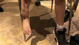 蒙古男童雙腳長度相差10公分 9歲蒙古男童阿默嬰兒時不慎摔斷腿,長大後兩腳長度相差10公分,經員榮及三總蒙古義診團診斷,認為男童的雙腳經手術可望治癒。(員榮醫療體系提供)中央社記者吳哲豪傳真 107年9月15日