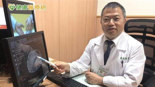 廖光福醫師提醒民眾,肝癌預防應從生活做起,才能及早發現、及早治療,爭取寶貴生命時間。