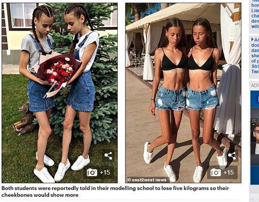 俄羅斯,雙胞胎,姐妹,減肥,厭食症(翻攝自《鏡報》)
