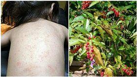 數珠珊瑚,珊瑚珠,紅疹,皮膚科,毒素(圖/翻攝自爆料公社)