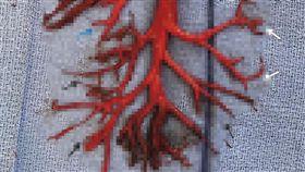 男子狂咳嗽,竟咳出「支氣管樹」凝血塊。(圖/翻攝自新英格蘭醫學期刊)