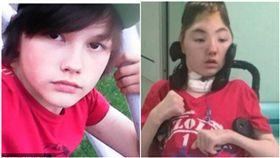 母遭性侵捨身救,少年慘遭打凹頭骨撐19個月走了。(圖/翻攝自太陽報)