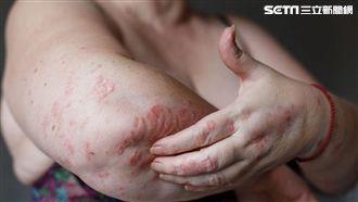 選後太過激情 中醫提醒小心乾癬發作