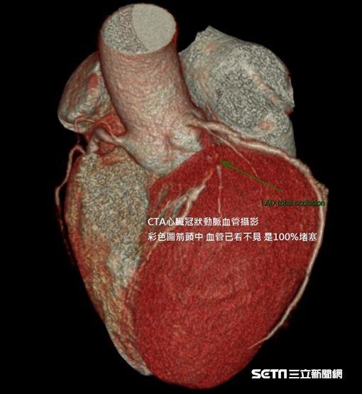 心肌梗塞(圖/北投健康管理醫院提供)