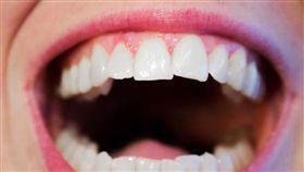 口腔內發現「小白斑」,竟然是口腔癌第1期。(示意圖/Pixabay)