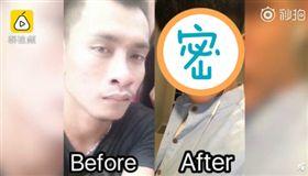 覺得自己長太醜!泰男整形30次成「韓星臉」完成舞者夢(圖/翻攝自《梨視頻》)