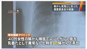(圖/翻攝自東京MX新聞)日本,誤診,肺癌,乳頭