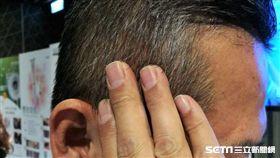 造成白頭髮的原因除了正常的年齡老化外,也會受到遺傳性少年白、代謝疾病、抽菸及紫外線等因素影響。(示意圖非新聞當事人/記者楊晴雯攝)