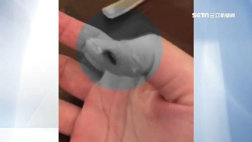恐怖兒童匙!銳利如刀片 割拇指濺血