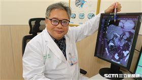 醫師王博民說明肝癌腫瘤生長過程。(圖/亞大醫院提供)