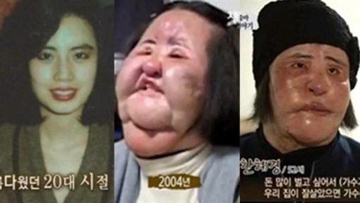 韓慧景,電風扇阿姨,整形,過世,整容,沙拉油,南韓翻攝自韓網