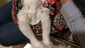 護理之家,女嬰,洗澡,燙傷,新北市/翻攝臉書