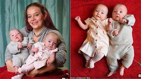 醫學罕例!32歲英女生龍鳳胎 兄妹竟差12天《每日郵報》
