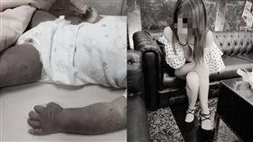 台南,虐童,刀傷,郭綜合醫院,家暴,女童(圖/當事人臉書,黑色豪門企業臉書))