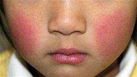 症狀類似感冒,臉頰會出現紅疹的「傳染性紅斑」,又稱為「蘋果病」,目前正在日本東京等地流行。孕婦感染後可能會對胎兒造成不良影響,各地方政府呼籲民眾多加留意。(圖/翻攝自@ fadeoutxkila2推特)