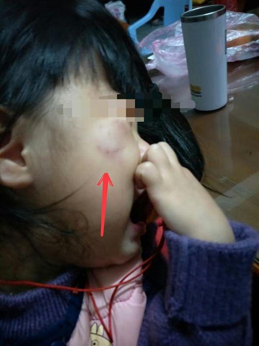 幼兒園,咬傷,抓傷,台中/爆料公社