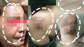 菸蒂,家暴,肋骨,台南/爆料公社