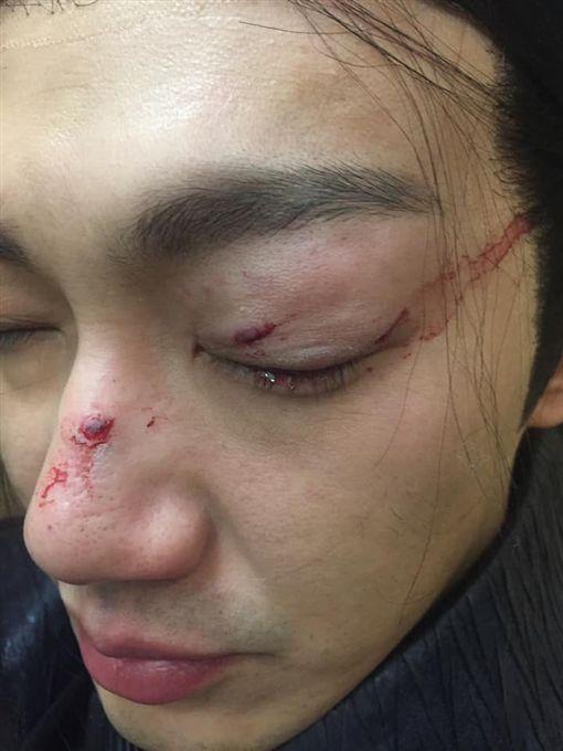 威廉眼睛遭木劍打傷爆血/翻攝自臉書