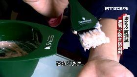 (透視)染髮劑炎腫(完成)