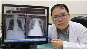 醫師劉思緯指出,46歲的陳小姐為洗腎病患,因為飲食習慣造成水份滯留,引起肺水腫(右圖為水腫的肺,圖左為正常的肺)。(圖/台中醫院提供)