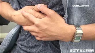 20歲男緊張就腹瀉 竟因罹患直腸癌