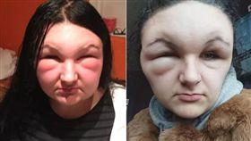 整個頭變形!對化學成分嚴重過敏 少女用染髮劑臉腫成豬頭(圖/翻攝自太陽報)